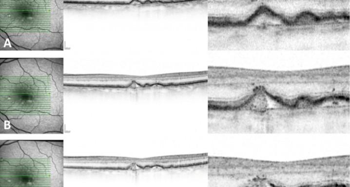 Identificació mitjançant SD-OCT d'una drusa que comença el procés d'atròfia. A) S'observa una drusa sense irregularitats, però amb hiper-reflectivitat en el RPE superposat. B) El RPE mostra irregularitats i punts hiper-reflectius per sobre. C) Els danys en el RPE són més evidents amb la presència de punts iso-reflectius — el drusen ooze.