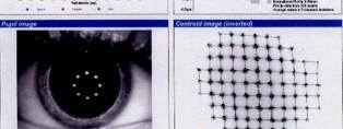 Aberrometria-corneal