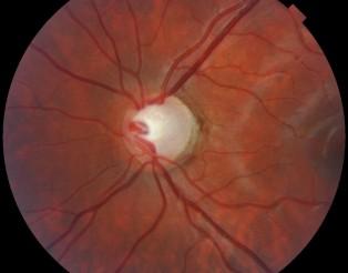 Glaucoma_ANGULOABIERTO