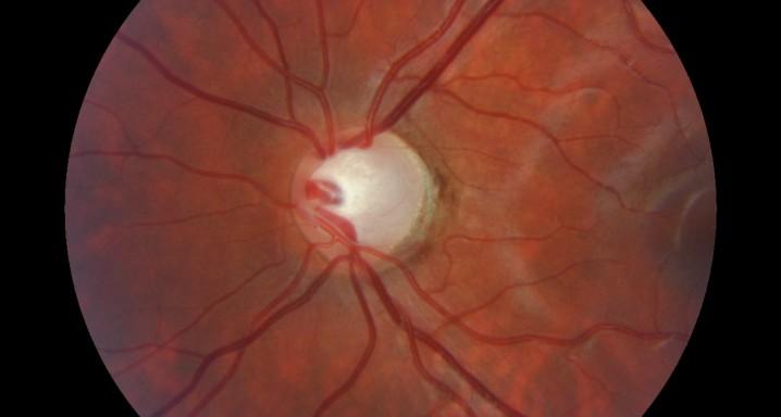 Glaucoma_Nervioptic1_PORTADA