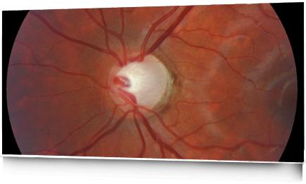 IMIR-ImagSLIDER GLAUCOMA 22S