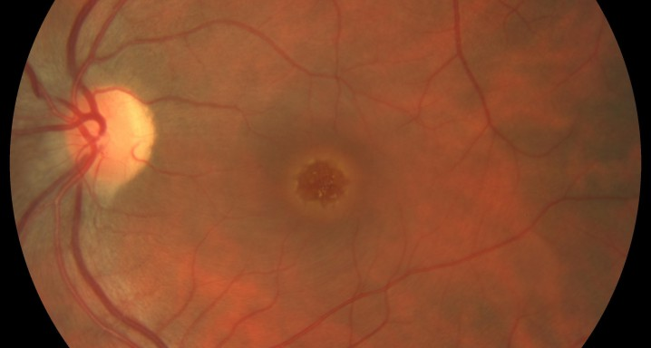 Macular hole I