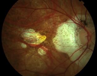 Retinografia miopia patologica