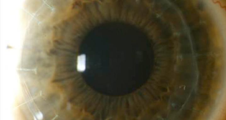 opacidad-corneal