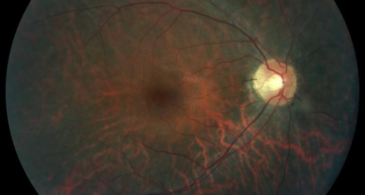 retinosi pigmentaria