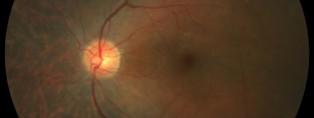 retinosi P