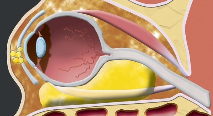 linfoangioma